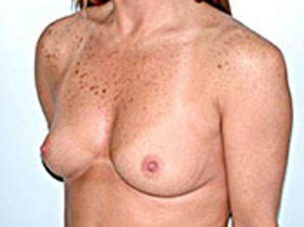 Breast Augmentation Gallery - Patient 4594809 - Image 1