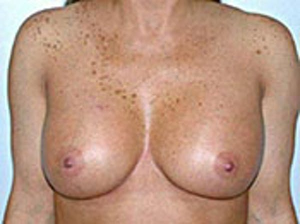 Breast Augmentation Gallery - Patient 4594809 - Image 2