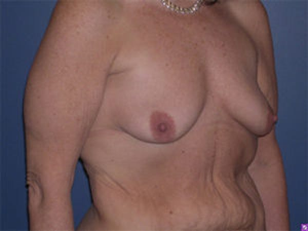 Breast Augmentation Gallery - Patient 4594810 - Image 3