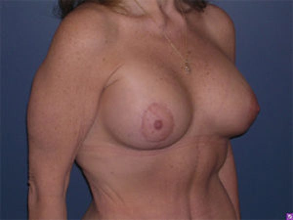Breast Augmentation Gallery - Patient 4594810 - Image 4