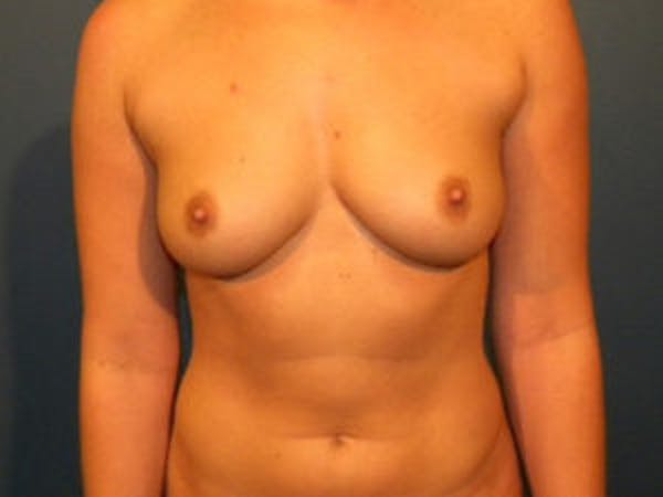 Breast Augmentation Gallery - Patient 4594812 - Image 1