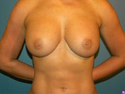 Breast Augmentation Gallery - Patient 4594812 - Image 2