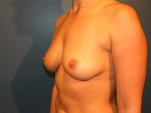 Breast Augmentation Gallery - Patient 4594812 - Image 3