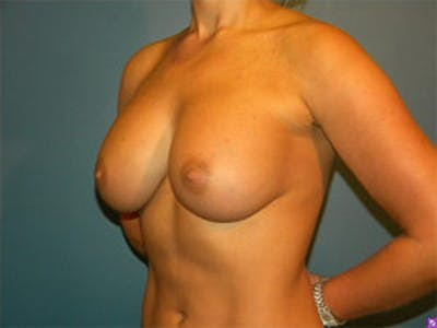 Breast Augmentation Gallery - Patient 4594812 - Image 4