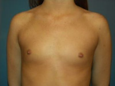 Breast Augmentation Gallery - Patient 4594813 - Image 1