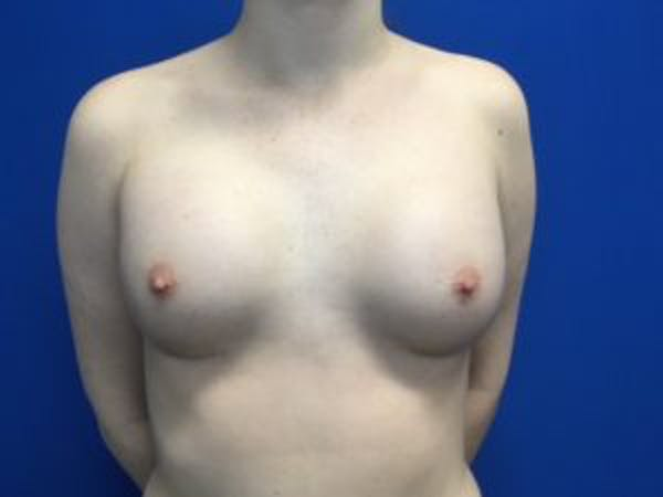 Breast Augmentation Gallery - Patient 4594813 - Image 2