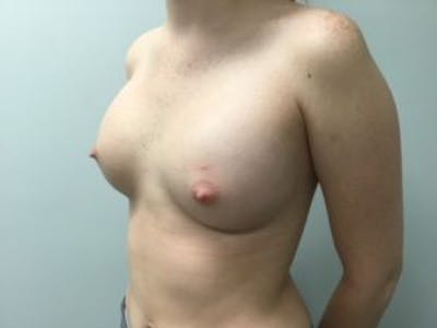 Breast Augmentation Gallery - Patient 4594813 - Image 4