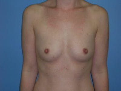 Breast Augmentation Gallery - Patient 4594814 - Image 1