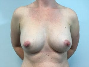 Breast Augmentation Gallery - Patient 4594814 - Image 2