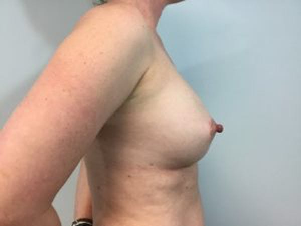Breast Augmentation Gallery - Patient 4594814 - Image 4
