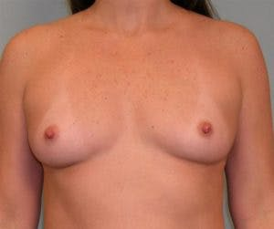 Breast Augmentation Gallery - Patient 4594816 - Image 1
