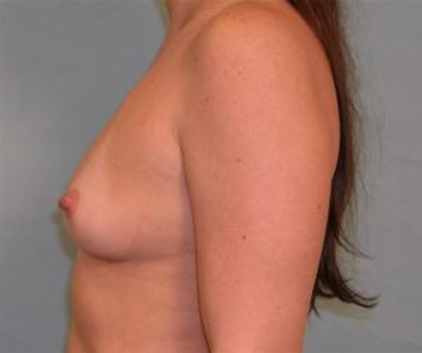 Breast Augmentation Gallery - Patient 4594816 - Image 3