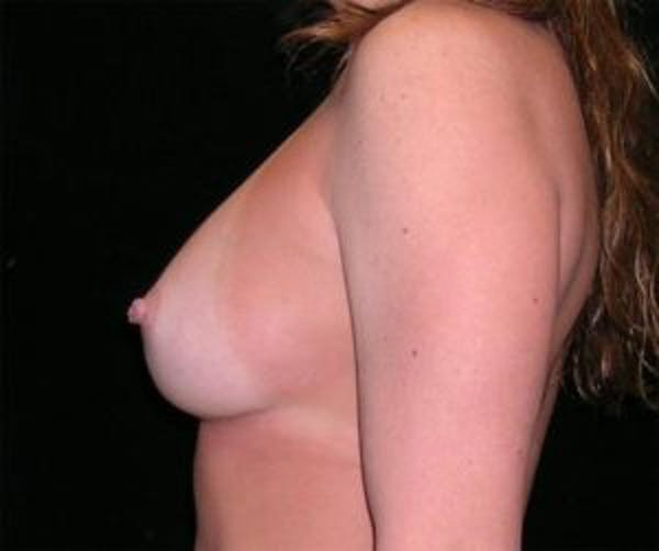 Breast Augmentation Gallery - Patient 4594816 - Image 4