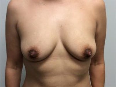 Breast Augmentation Gallery - Patient 4594819 - Image 1