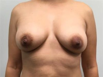 Breast Augmentation Gallery - Patient 4594819 - Image 2