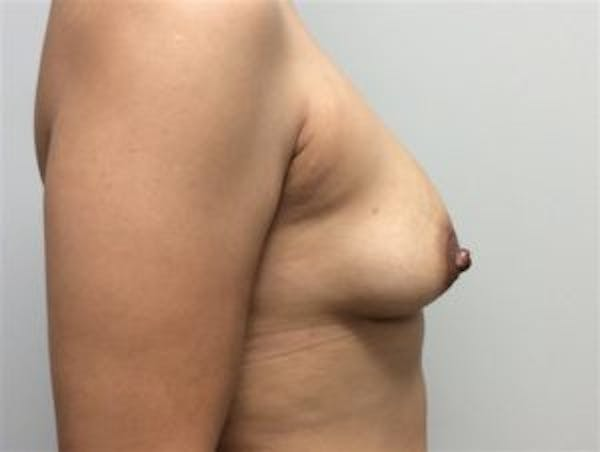 Breast Augmentation Gallery - Patient 4594819 - Image 3