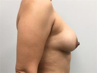 Breast Augmentation Gallery - Patient 4594819 - Image 4