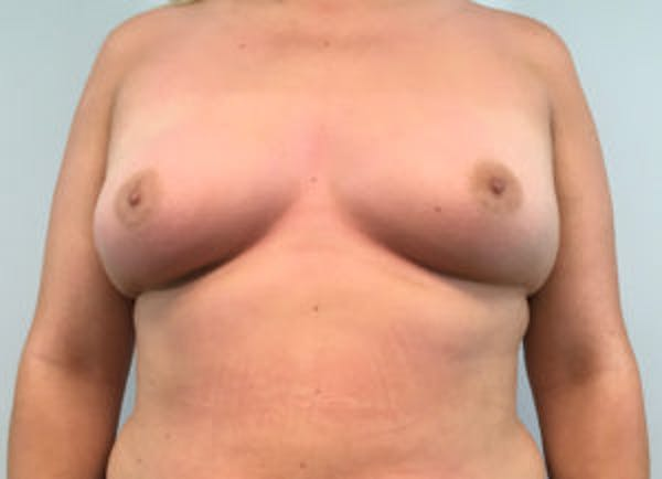 Breast Augmentation Gallery - Patient 4594820 - Image 1