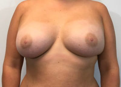 Breast Augmentation Gallery - Patient 4594820 - Image 2