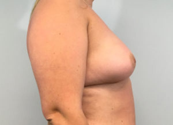 Breast Augmentation Gallery - Patient 4594820 - Image 3