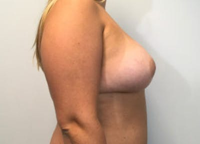 Breast Augmentation Gallery - Patient 4594820 - Image 4