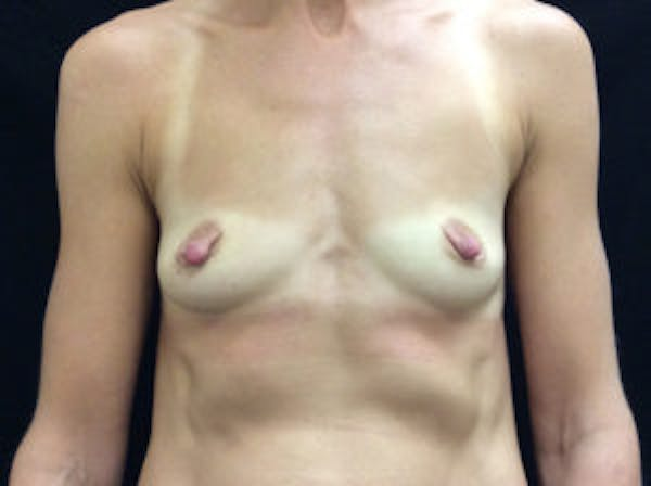 Breast Augmentation Gallery - Patient 4594822 - Image 1