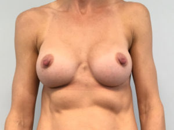 Breast Augmentation Gallery - Patient 4594822 - Image 2