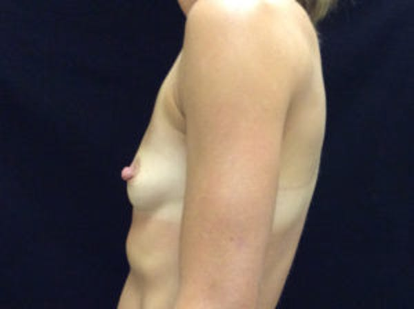 Breast Augmentation Gallery - Patient 4594822 - Image 3