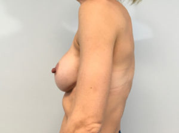 Breast Augmentation Gallery - Patient 4594822 - Image 4