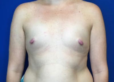 Breast Augmentation Gallery - Patient 4594826 - Image 1