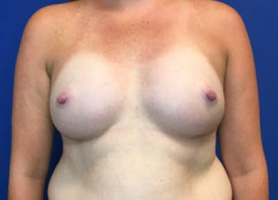 Breast Augmentation Gallery - Patient 4594826 - Image 2