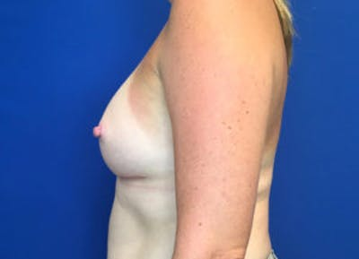 Breast Augmentation Gallery - Patient 4594826 - Image 4