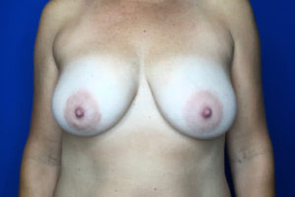 Breast Augmentation Gallery - Patient 4594827 - Image 1