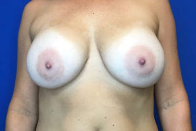 Breast Augmentation Gallery - Patient 4594827 - Image 2