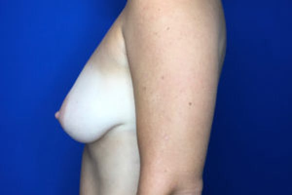 Breast Augmentation Gallery - Patient 4594827 - Image 3