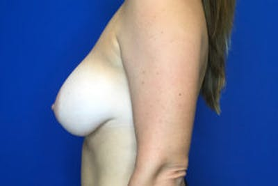 Breast Augmentation Gallery - Patient 4594827 - Image 4