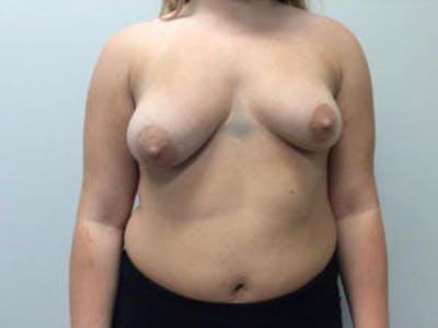Breast Augmentation Gallery - Patient 4594828 - Image 1