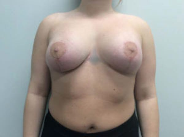 Breast Augmentation Gallery - Patient 4594828 - Image 2