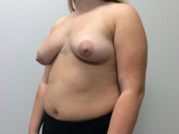 Breast Augmentation Gallery - Patient 4594828 - Image 3