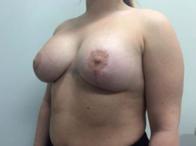 Breast Augmentation Gallery - Patient 4594828 - Image 4