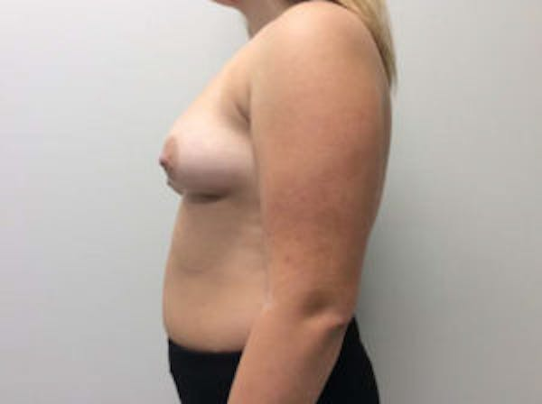 Breast Augmentation Gallery - Patient 4594828 - Image 5