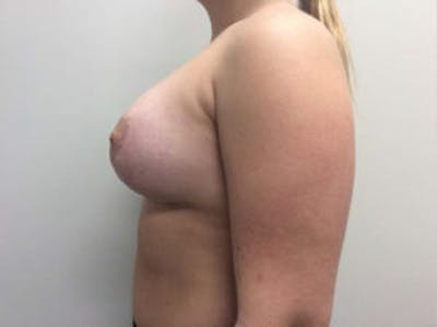 Breast Augmentation Gallery - Patient 4594828 - Image 6