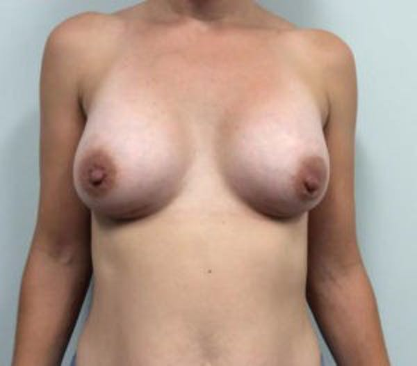 Breast Augmentation Gallery - Patient 4594829 - Image 2
