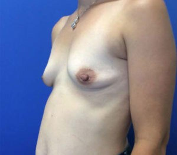 Breast Augmentation Gallery - Patient 4594829 - Image 3