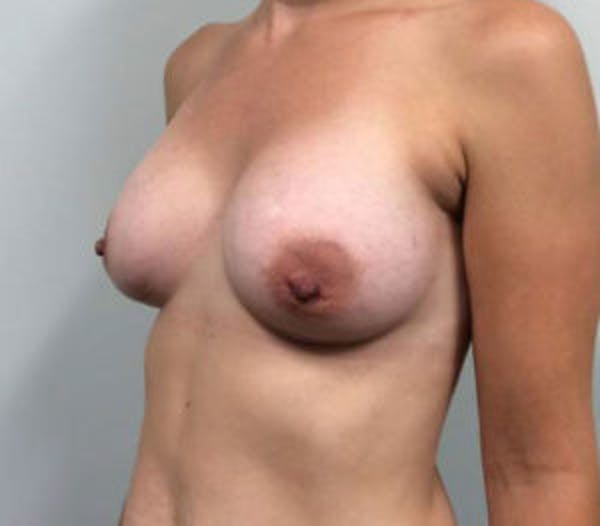 Breast Augmentation Gallery - Patient 4594829 - Image 4