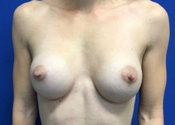 Breast Augmentation Gallery - Patient 4594830 - Image 2