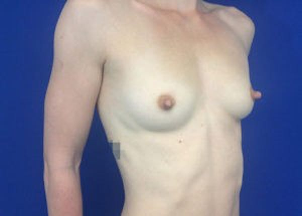 Breast Augmentation Gallery - Patient 4594830 - Image 3