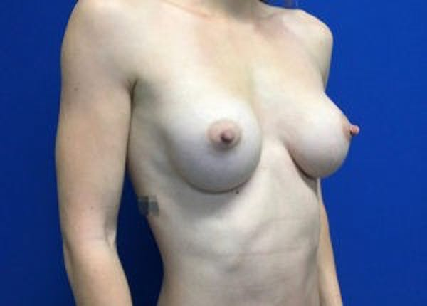 Breast Augmentation Gallery - Patient 4594830 - Image 4