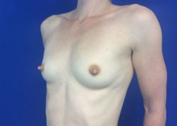 Breast Augmentation Gallery - Patient 4594830 - Image 5
