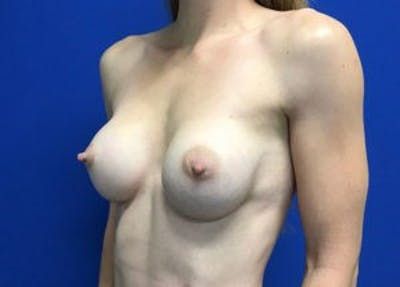 Breast Augmentation Gallery - Patient 4594830 - Image 6